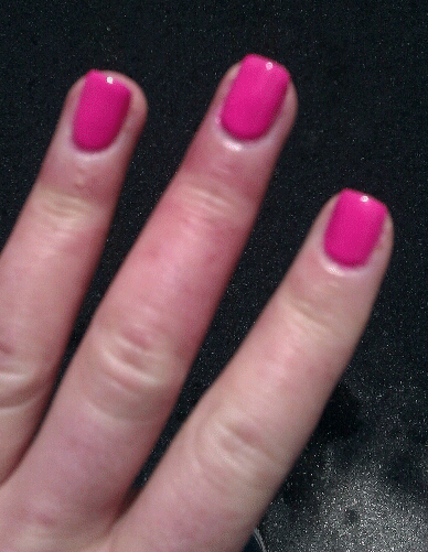 lupus nails before